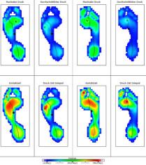 statische und dynamische Fussdruckmessung